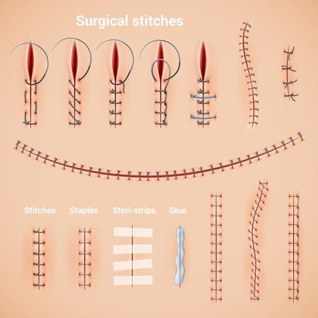 Sutura quirúrgica sutura un conjunto realista de métodos de costura y formas con grapas, pegamento y leyendas de texto, ilustración vectorial