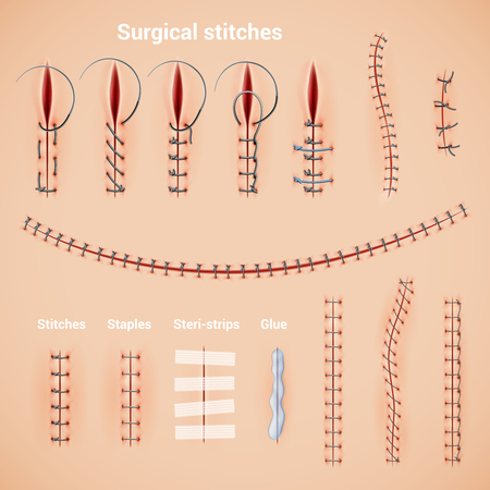 Szew chirurgiczny szwy realistyczny zestaw metod i kształtów zszywek za pomocą zszywek kleju i ilustracji wektorowych podpisów tekstowych