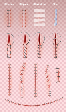 Surgical suture stitches realistic set of images on transparent background with different shapes of medical stitching vector illustration
