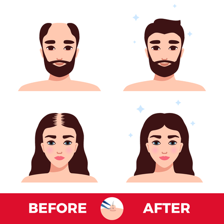 Man and woman before and after hair transplantation on white background flat vector illustration