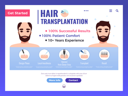 Hair transplantation web banner with infographics advertising and interface elements on white background vector illustration Иллюстрация