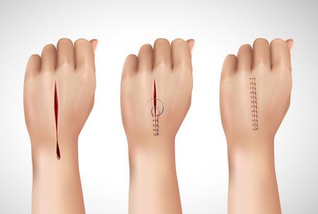 Chirurgische hechtdraad hecht realistische compositie met geïsoleerde afbeeldingen van menselijke hand in verschillende stadia van het naaien van vectorillustratie