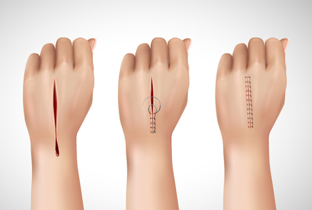 Surgical suture stitches realistic composition with isolated images of human hand at different stages of stitching vector illustration