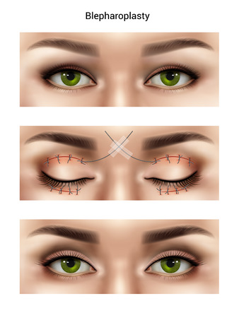 Surgical suture stitches realistic composition with images of female eyes at different stages of blepharoplasty procedures vector illustration