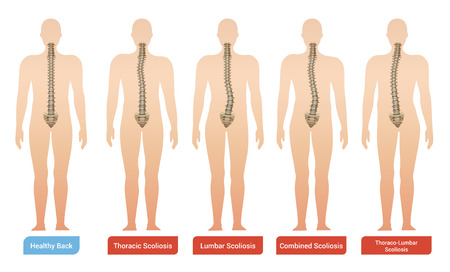 Spinal curvature scoliosis medical infographic images set with silhouettes of human body with spine and text vector illustration