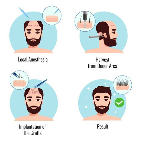Concepto de diseño con hombre barbudo en las etapas del procedimiento de trasplante de cabello aislado ilustración vectorial Ilustración de vector
