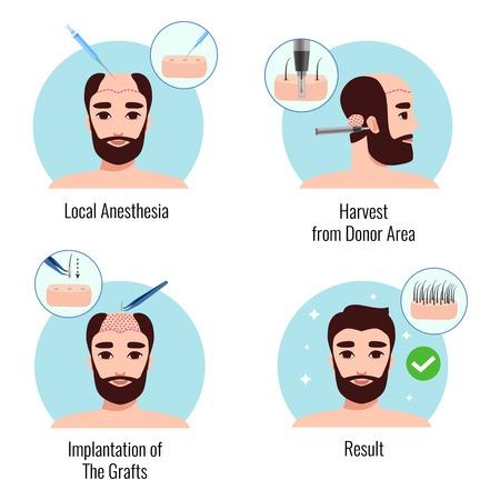 Designkonzept mit bärtigem Mann auf Stadien des Haartransplantationsverfahrens isolierte Vektorillustration Vektorgrafik