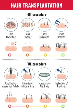 Métodos de trasplante de cabello con etapas de infografía de procedimiento en la ilustración de vector de fondo blanco