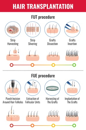 Methods of hair transplantation with stages of procedure infographics on white background vector illustration