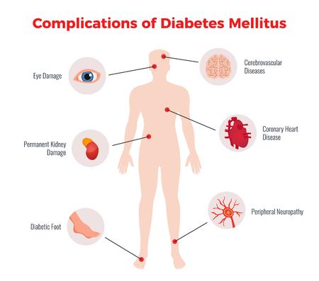 Diabetes complicaties medische educatieve grafiek poster met aangetaste menselijke organen beschadigt afbeelding en beschrijving platte vectorillustratie