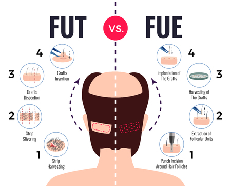 Methods of hair transplantation fut vs fue poster with infographic elements on white background vector illustration Vettoriali