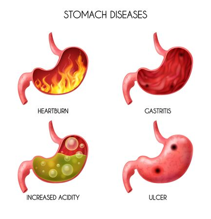 Realistic human internal organ stomach icon set pyrosis fire disorder gastric acid reflux abdominal bloated ball nausea vector illustration