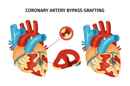 Anatomy of heart with coronary artery bypass grafting flat vector illustration
