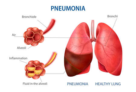 Pneumonia realistic set with healthy lung symbols vector illustration
