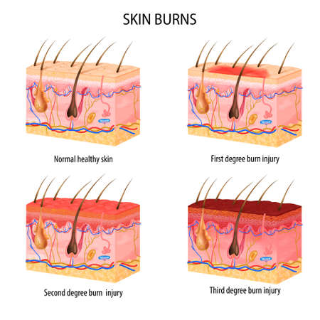 Realistic set of normal and three degree of burns skin structure isolated on white background vector illustration