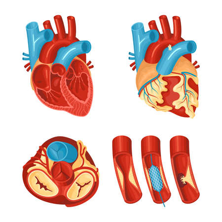 Anatomy of healthy and diseased heart flat set isolated on white background vector illustration