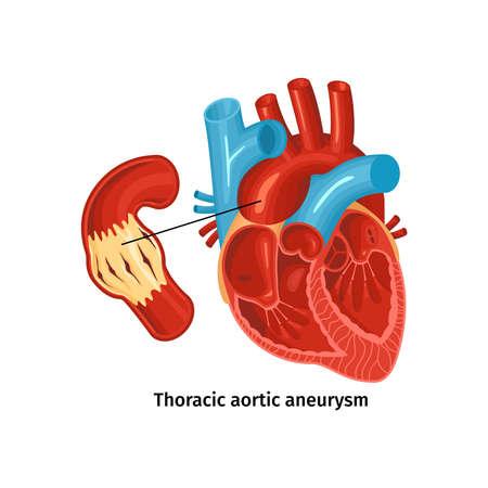 Heart Disease Anatomy Poster