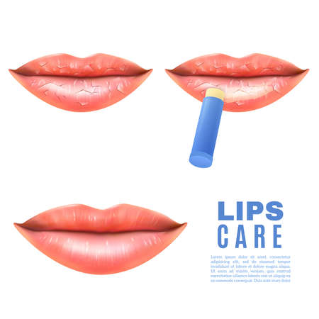 Lip care balsam for moisturizing treatment of chapped dry and sensitive lips white background poster realistic vector illustration