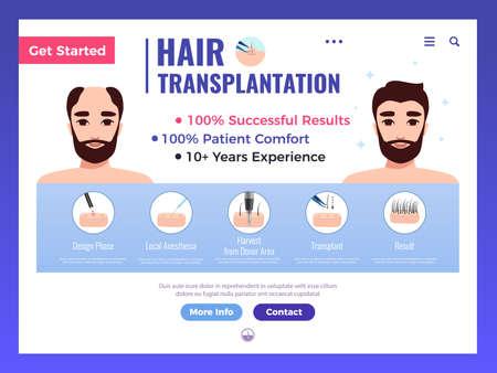 Hair transplantation web banner with infographics advertising and interface elements on white background vector illustration Ilustracje wektorowe