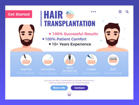 Hair transplantation web banner with infographics advertising and interface elements on white background vector illustration Vektorové ilustrace