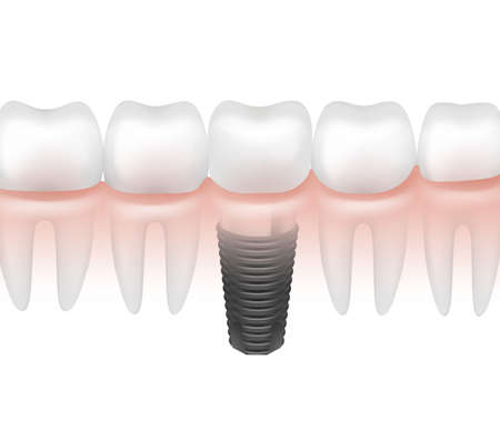 Vector metal dental implant between other teeth in gum side view isolated on white background Vector Illustratie