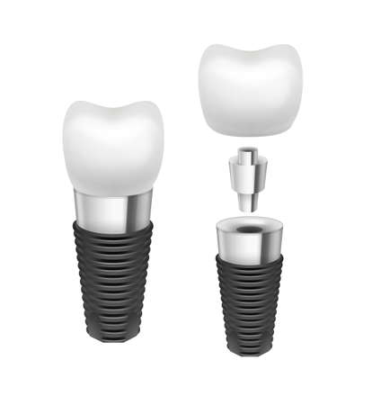 Vector metal disassembled tooth implant side view isolated on white background