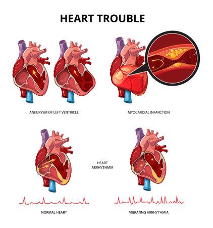 Heart disease vector infographics. Medical human heart infographic information illustration