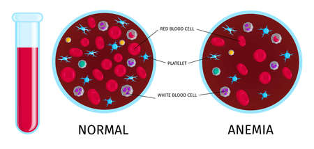 Anemia colorful educative info chart with test tube normal and low number red blood cells samples vector illustration Ilustracja