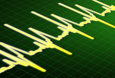 ECG - Heartbeat impulse line Stock Photo - 16436055