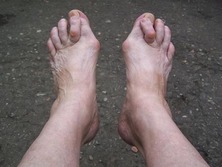 Bare foots which have Hallux Valgus problem.