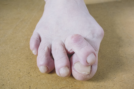 Valgus Deformity of Female Leg Due Hallux Valgus and Weakness of Ligaments.