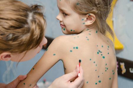 varicela: Lubricaci�n zelenkoj lesiones de la varicela en la parte posterior de una ni�a