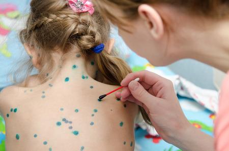 sores: Lubrificazione zelenkoj piaghe varicella sul retro di una bambina Archivio Fotografico