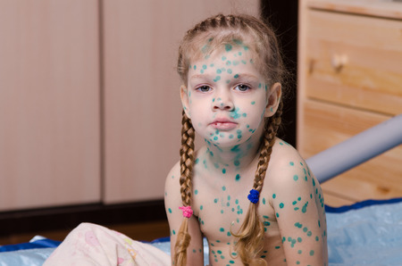 The little girl suffering from chicken pox is covered by green dots