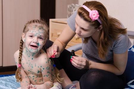 varicela: Mamá pierde zelenkoj llagas en el cuerpo de un niño que sufre de varicela Foto de archivo