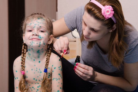 chickenpox: Mom misses zelenkoj sores on the body of a child suffering from chickenpox