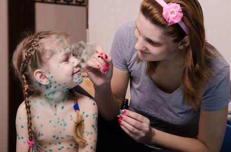 varicela: Mamá pierde zelenkoj llagas en la cara de un niño que sufre de varicela