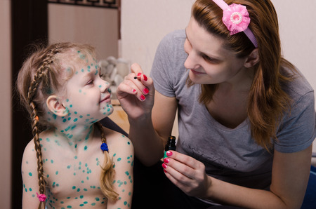chickenpox: Mom misses zelenkoj sores on the face of a child suffering from chickenpox