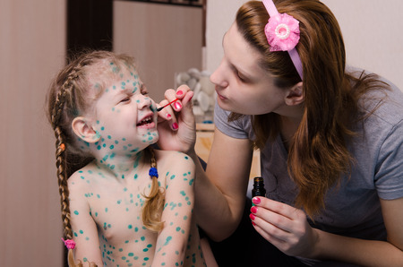 misses: Mom misses zelenkoj sores on the face of a child suffering from chickenpox