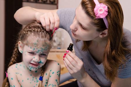 sores: Mamma manca zelenkoj ferite sul volto di un bambino affetto da varicella