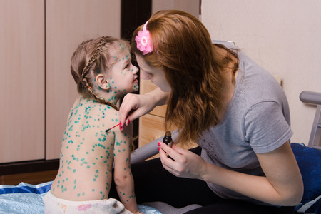 sores: Mamma manca zelenkoj piaghe sul corpo di un bambino affetto da varicella