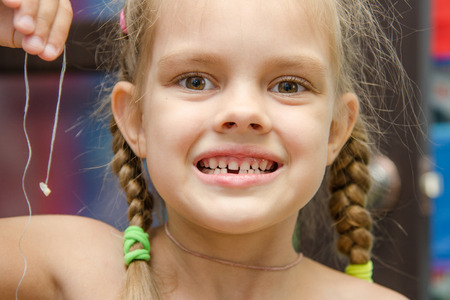 lower teeth: Six year old girl holding her milk had fallen lower front teeth on a string