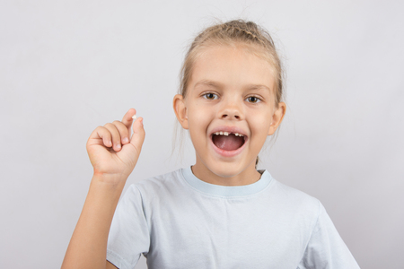 front teeth: Six year old girl showing her fallen Milk front upper teeth Stock Photo