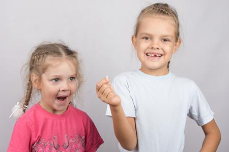 bebes ni�as: Dientes superiores frontales Leche Seis a�os de edad que muestra su la otra chica hab�a ca�do