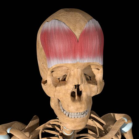 This is a 3d illustration of the Frontalis muscle on skeleton