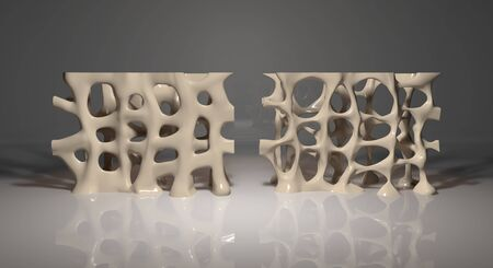 This 3d illustration shows a healthy bone segment compared to the same segment with osteoporosis