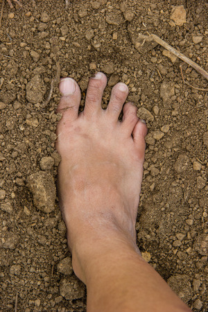 unhygienic: dirty feet