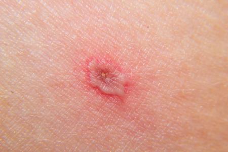 Nahaufnahme von Windpocken (Varizellen) auf der Haut im Endstadium