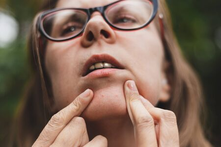 Woman checking the skin of her chin for pimple - Concept of dermatology hygiene against acne - Beauty healthcare