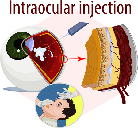 central chamber: Vector illustration of intraocular injection. Illustration